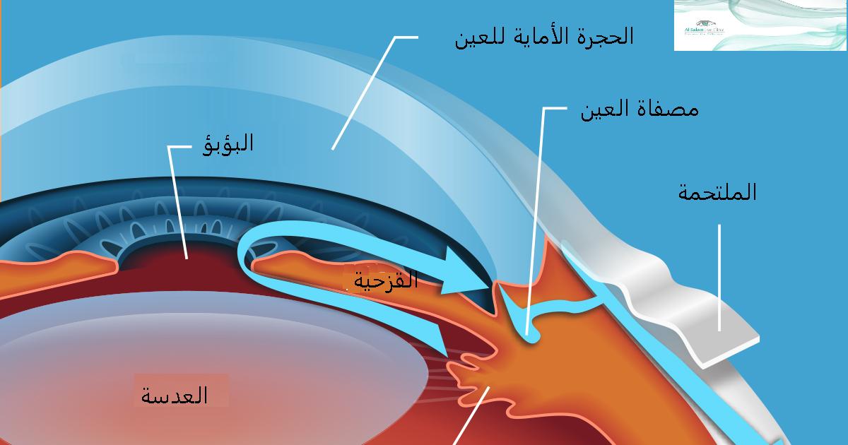 ما هو إرتفاع ضغط العين ، الزرق (المياه السوداء ، أو الجلوكوما) : هو مرض يصيب عصب العين بشكل بطئ و تدريجي مما يؤدي الي تلف العصب و غالبا ما يرتبط بارتفاع ضغط العين