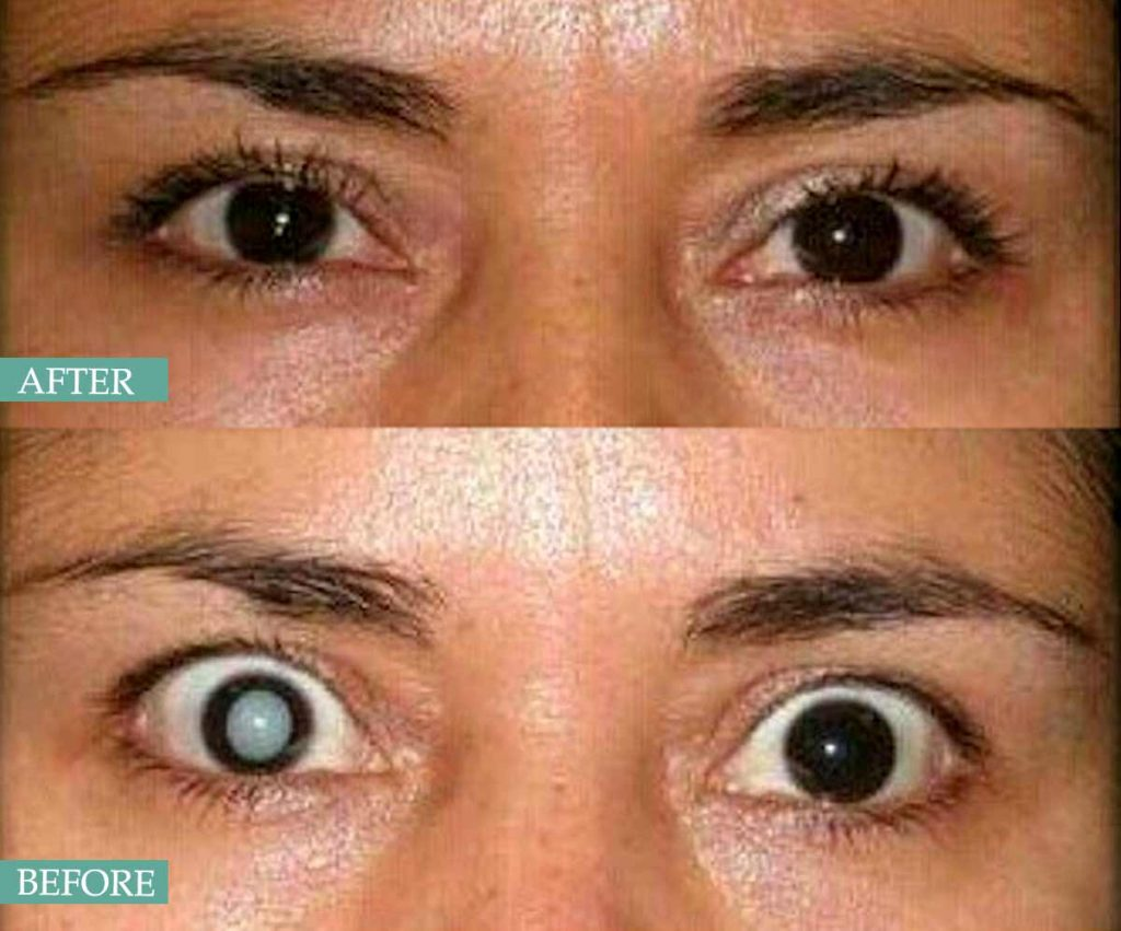 The lecture is for medical students anatomy of the lens, causes of cataract, complications of cataract surgery. Phacoemulsification