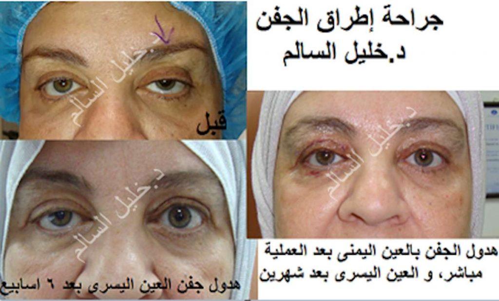 علاج هدول الجفن في كلا العينين د.خليل السالم