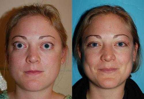 جحوظ العين: بروز العين خراج محجر العين ، من الطبيعي أن تكون ثلث العين خارج المحجر أي زيادة عن الثلث قد يكون مرض. من أهم أسباب جحوظ العين مرض الغدة الدرقية