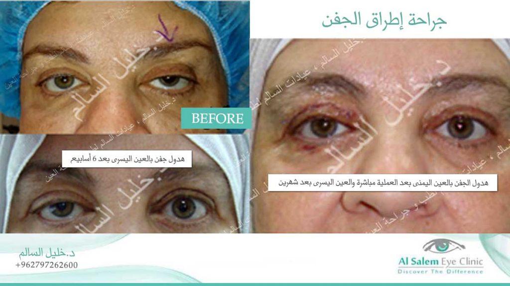 جراحة تجميل العين
