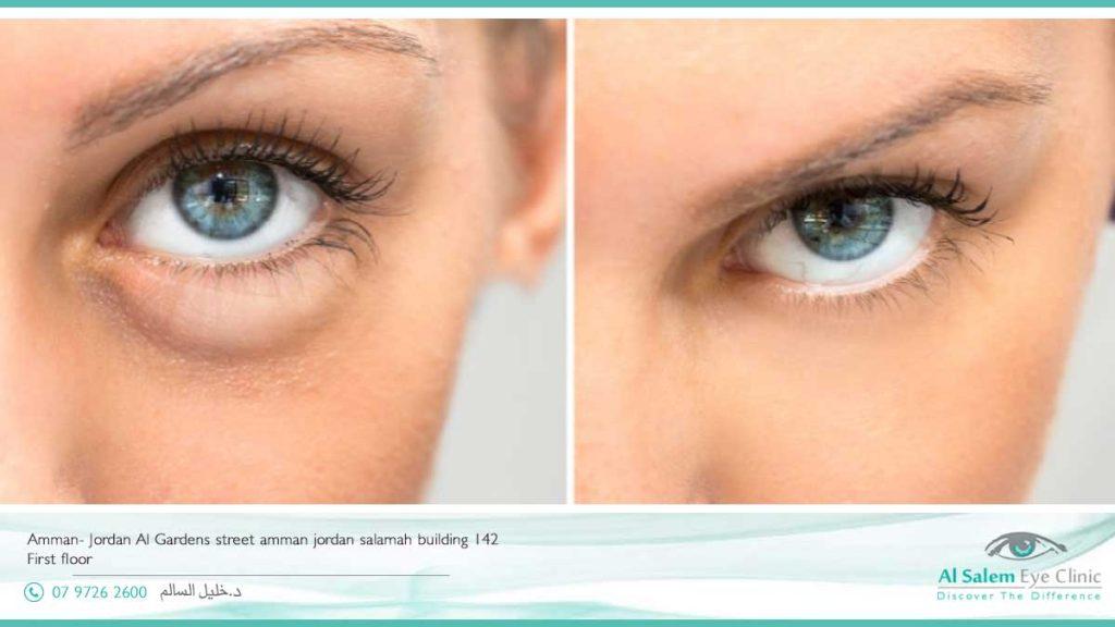 انتفاخ الجفون السفلي أو الأكياس تحت العينين أو الأكياس الجفنية