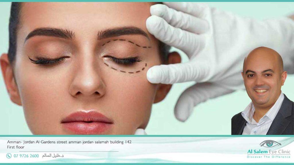 تكلفة عمليات تجميل العيون بالأردن