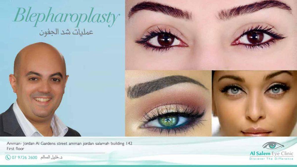 تكلفة عمليات تجميل العيون في الأردن