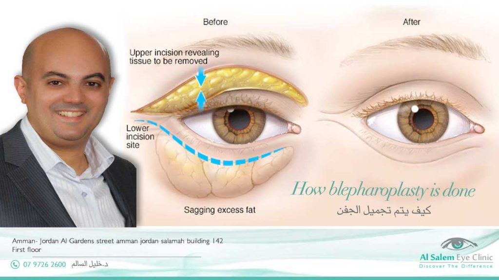 blepharoplasty done in Jordan