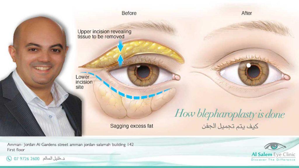 blepharoplasty done in Jordan