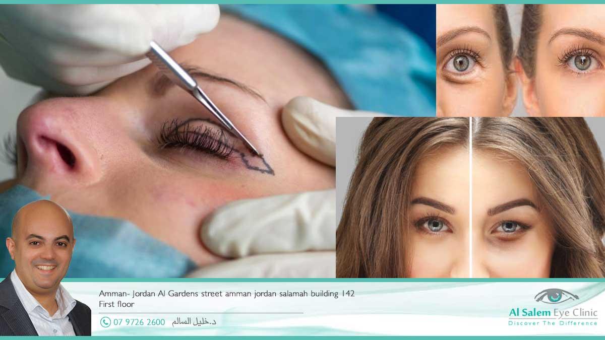 عمليات تجميل العيون في الأردن منها: عمليات تجميل العيون الصغيرة ، عمليات توسيع فتحة العين ، عمليات تجميل العيون الجاحظة ، عمليات رفع جفن العين