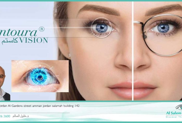 الكونتورا ، عمليات الليزك التفصيلي . آخر صيحات تصحيح البصر