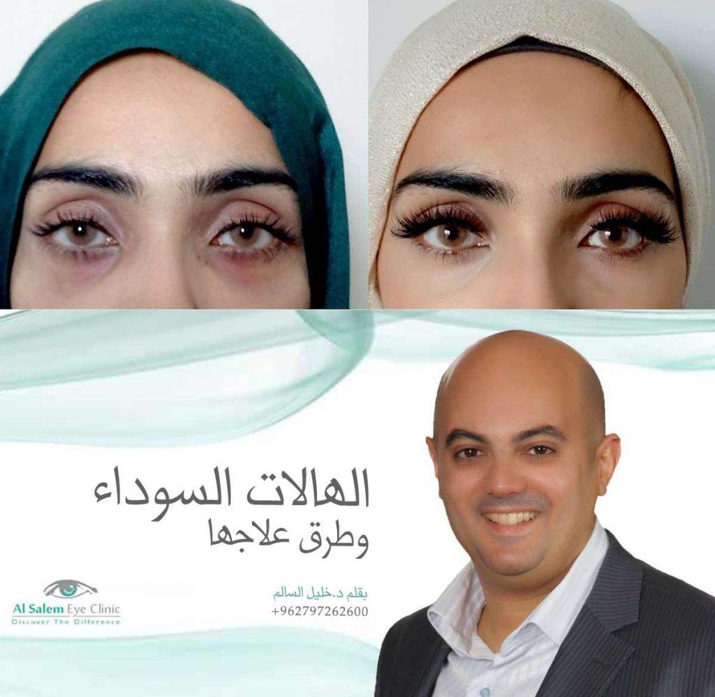 الهالات السوداء أو الجفن الغامق ، تقسم أسباب الهالات السوداء إلي نوعين ترقق الأوعية الدموية أو زيادة الميلانين تحت العينين إليكم حلول تبييض الجفن العلوي