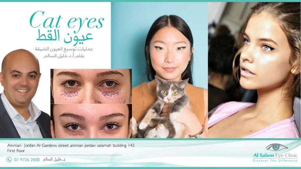 عمليات توسيع العيون