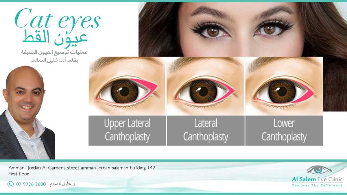 عمليات عين القط تكبير حجم العين إضافة مساحة أكبر للجفن