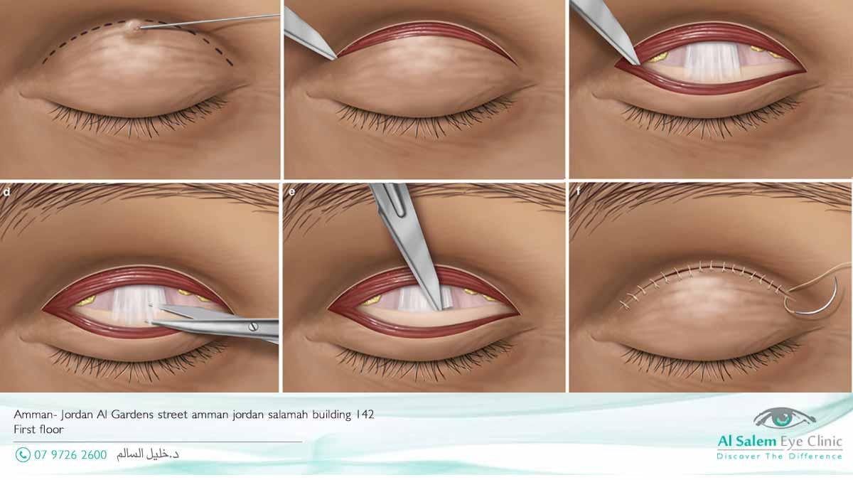 رأْب الجفن علاج العيون الغائره