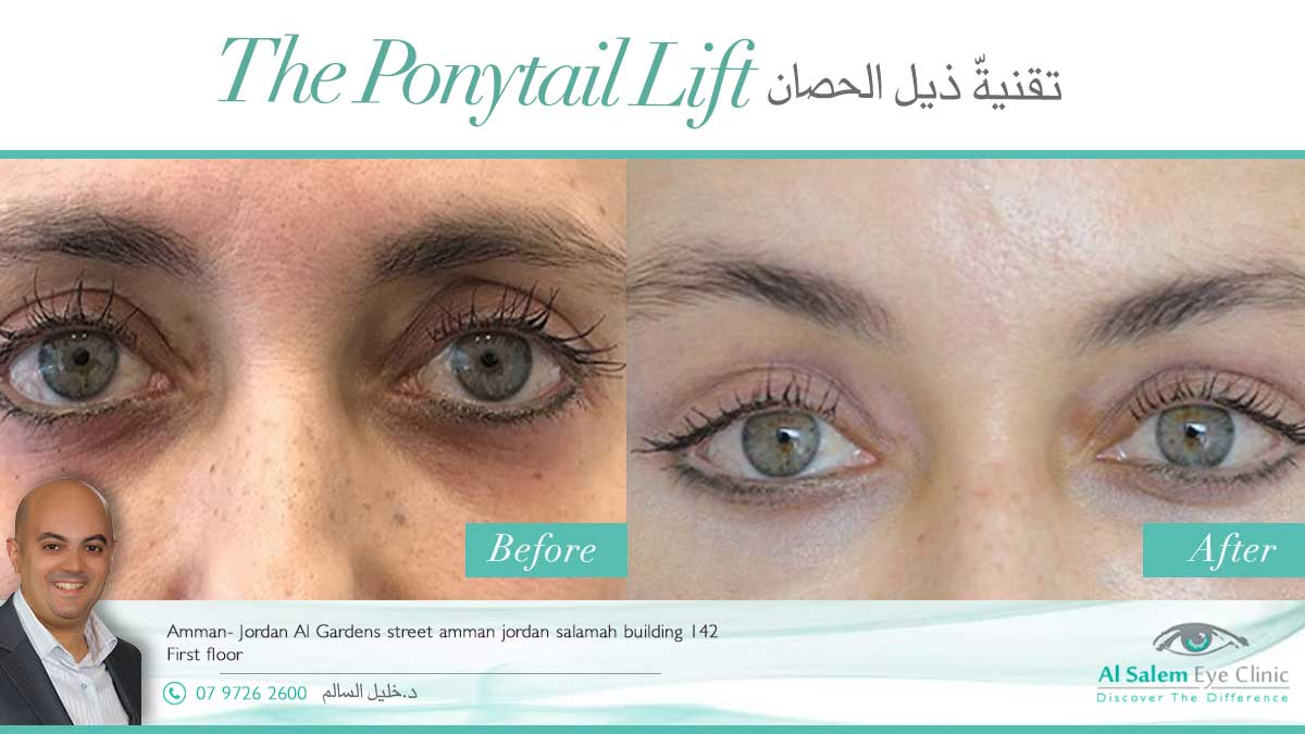 Ponytail face lift