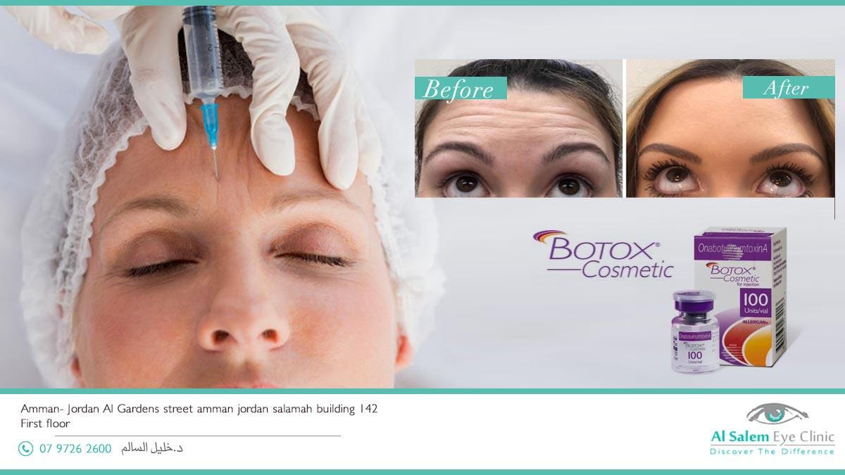 البوتكس أو البوتوكس أو البتكس مرادفات لعلاج هو الأكثر شيوعا في مجال الطب التجميلي وهو عقار مميز في علاج التجاعيد المتحركه علاج إختلاف الوجه وعلاج الصداع و الإفراط الزائد في نشاط العضلات
