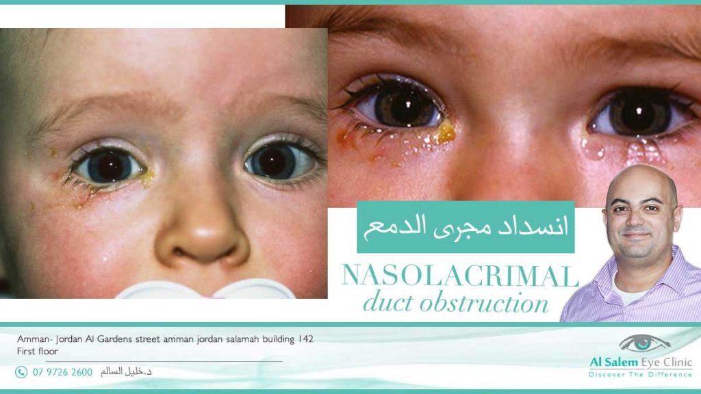 انسداد القنوات الدمعية أو تضيق القنوات الدمعية : علاج إنسداد مجرى الدمع عند الأطفال