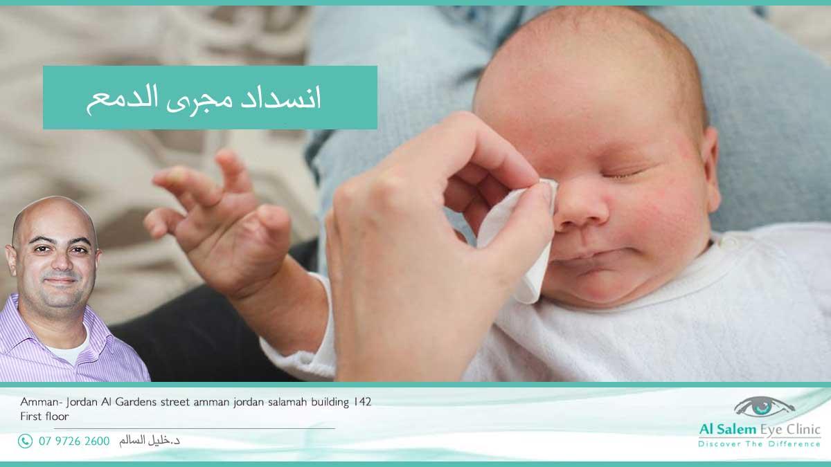 نسداد القنوات الدمعية تؤدي الي تهيج العين و إنهمار الدمع من العين بشكل مستمر