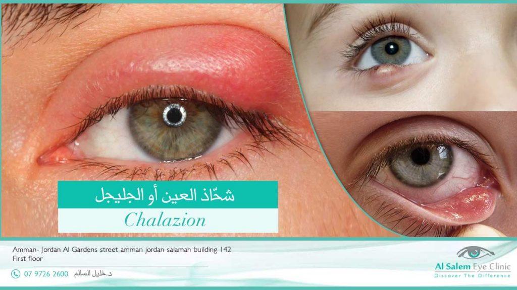 شحاذ العين أو الجليجل أو الجنيجل : هي كتلة مؤلمة في جفن العين ، من أكثر الأمراض التي تصيب جفن العين ، و تدفع بالمريض لطلب العلاج . تعرف علي المسبب و العلاج
