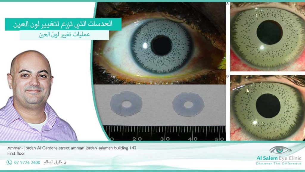مضاعفات عمليات تغيير لون العين