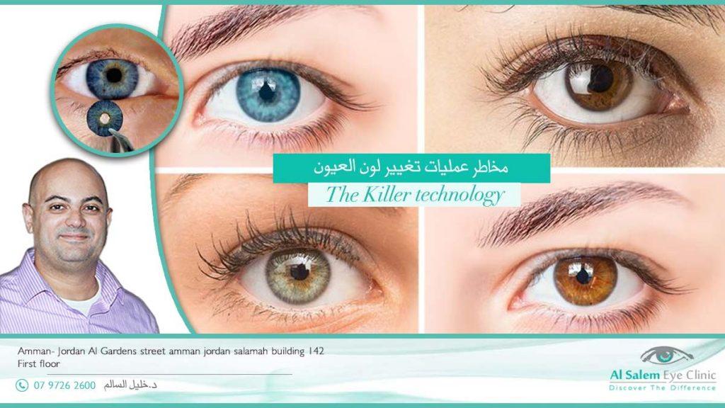 مضاعفات عمليات تغيير لون العين العيون الملونة
