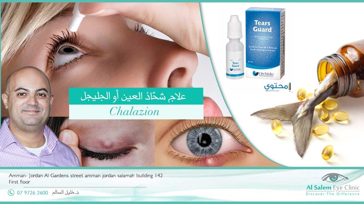 شحاذ العين أو الجليجل أو الجنيجل : هي كتلة مؤلمة في جفن العين ، من أكثر الأمراض التي تصيب جفن العين ، و تدفع بالمريض لطلب العلاج . تعرف علي المسبب و العلاج الطريقة الصحيحة لاستخدام القطرات الطبية تتمثل في التأكد من نوع قطرة العين ، و مدة صلاحيتها و استخدام الآلية المناسبة لوضع قطرات العين. الخطوات بالتفصيل