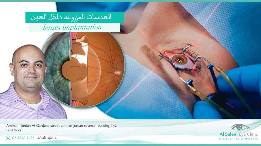 العدسات المزروعه داخل العين عدسات متعددة البؤر