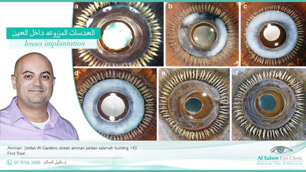 عدسات متعددة البؤر العدسات التي تزرع داخل العين