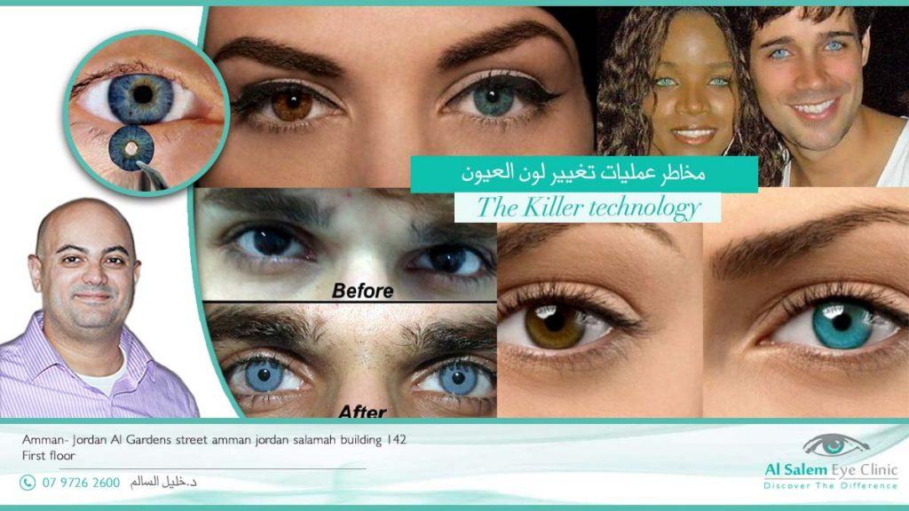 هل أنت مصرة بعد علي عمليات العيون الملونة ؟