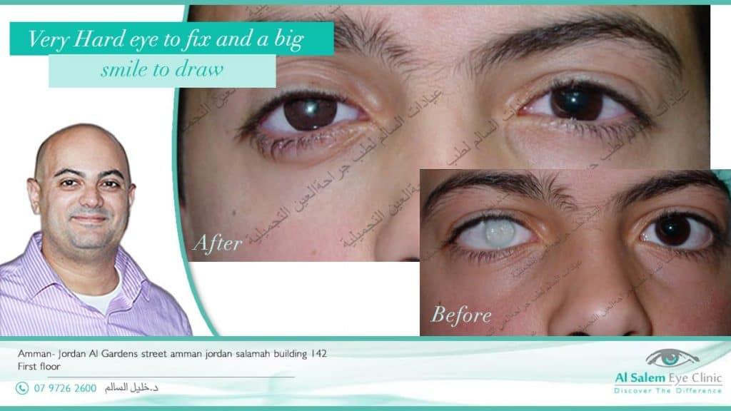 العيون الاصطناعية تعرف بعدة أسماء عامية منها العيون الصناعية ، العيون الصناعية المتحركة ، العيون الصناعية التجميلية ، و العيون الصناعية التعويضية