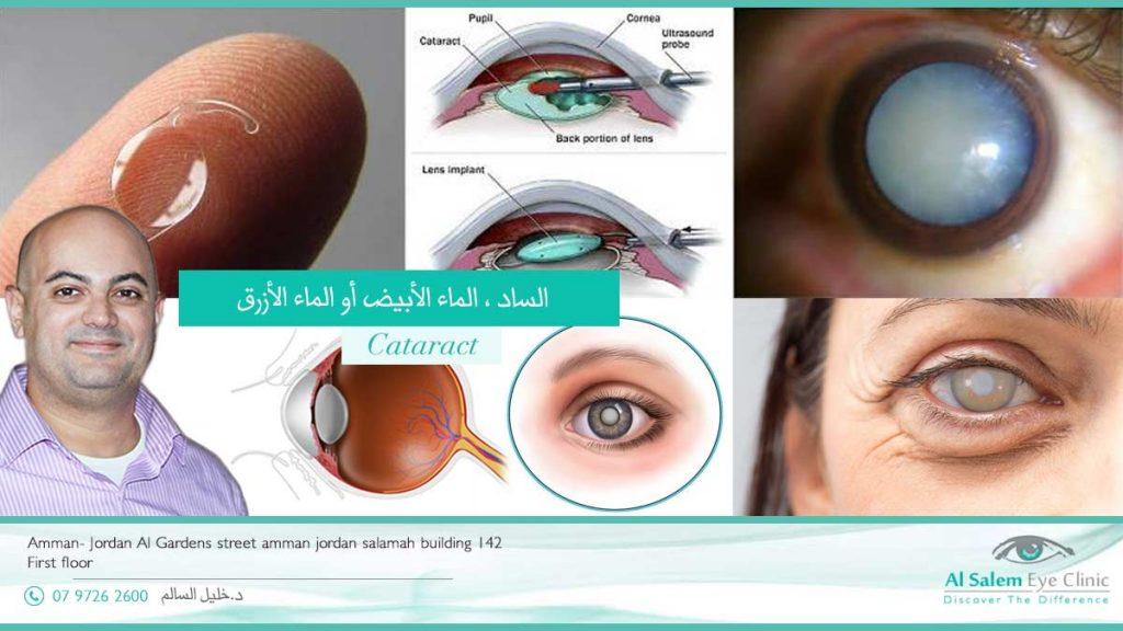 الماء الأبيض او الماء الأزرق هو إعتام عدسة العين ساد العين و خطوات عملية الفاكو النصائح بعد عملية الساد