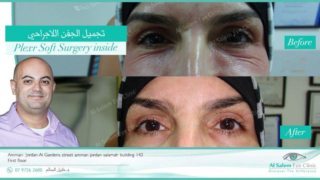 تجميل الجفن اللاجراحي ( بلكسر ) : التقنية الاحدث و الأسرع في شد الجلد المترهل حول العين