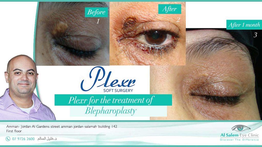 ما هو الفرق بين الليزر التقشيري و اللاتقشيري ؟ و لماذا تميزت تقنية بلكسر بعلاج التجاعيد حول العين ؟