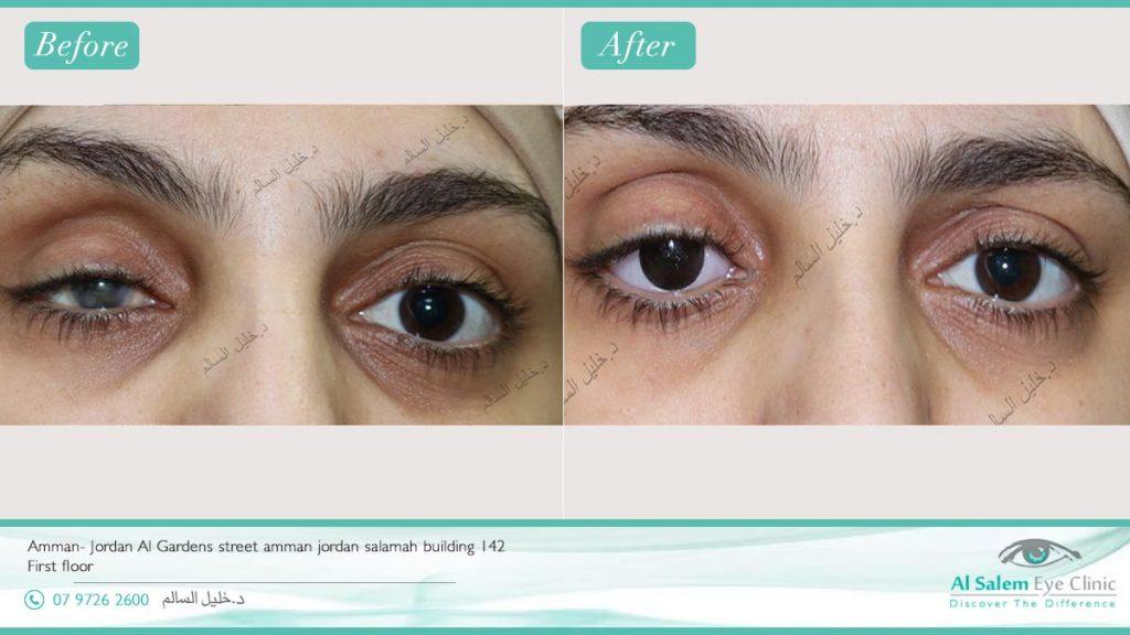نتائج العيون الإصطناعية