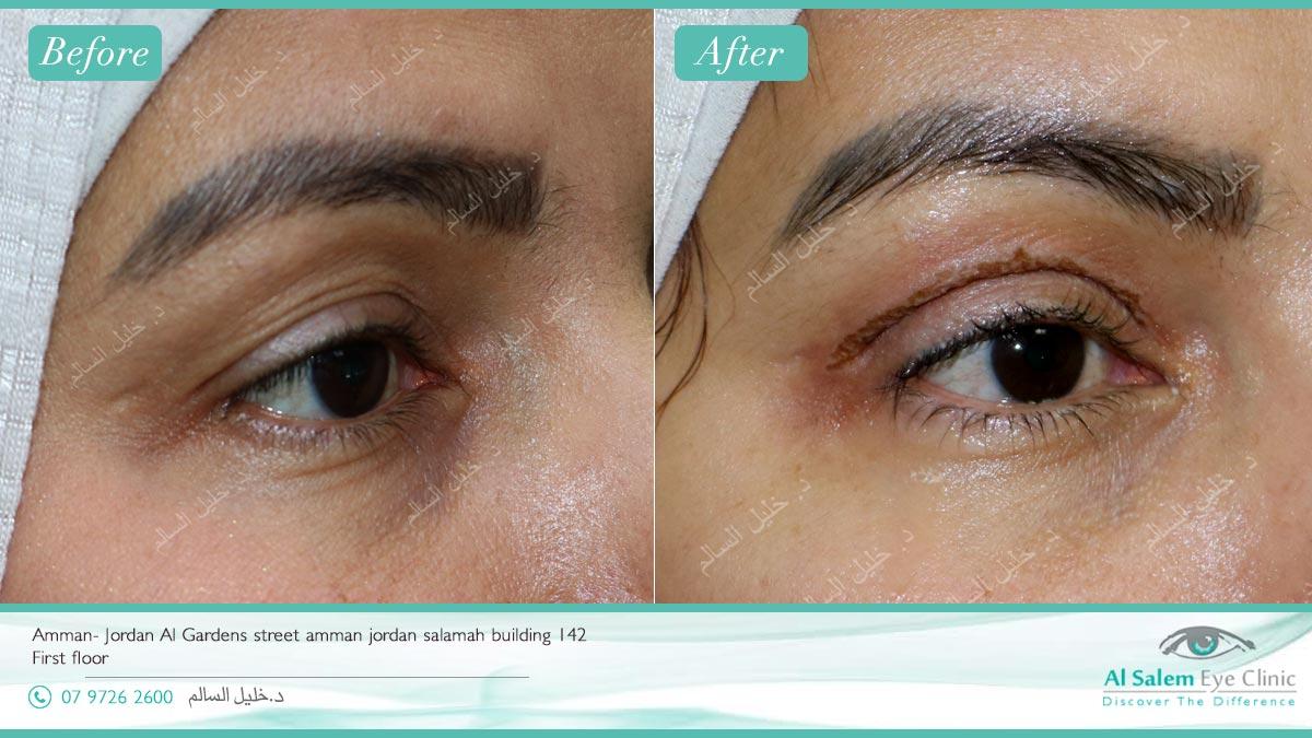 plexr soft surgery, immediate improvement of wrinkles after plexr شد الجفون بالليزر