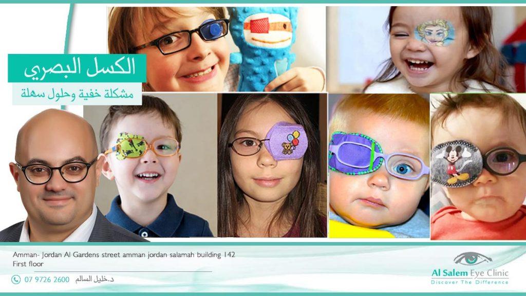 العين الكسولة ،  أو الكسل البصري أو كسل العين ، إأنخفاض حدة الأبصار ،حتى بمساعدة النظارات الطبية وذلك بسبب عدم تعرف الدماغ علي العين بالمراحل الأولي للعمر