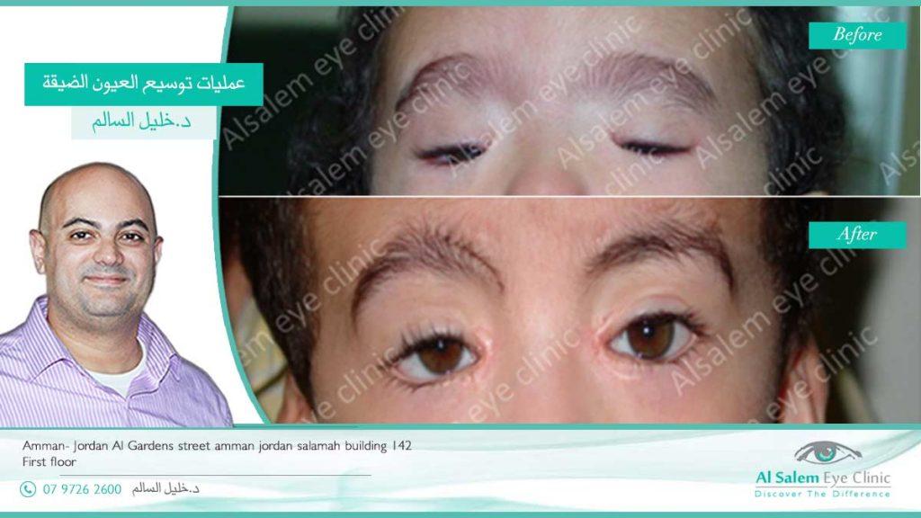 توسيع العيون الضيقه زيادة حجم الجفن