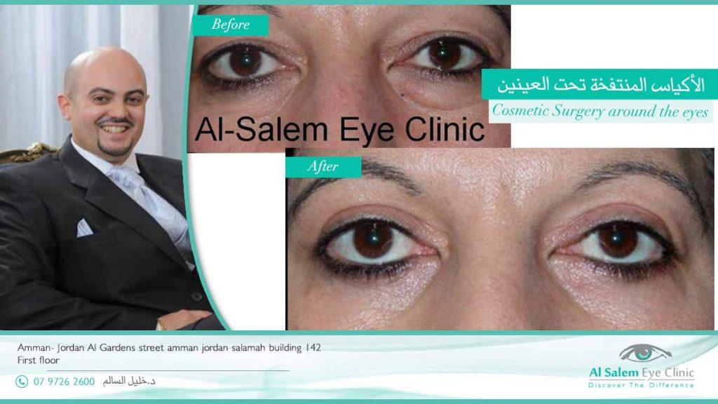 baggy eyes جراحة تجميل الجفون