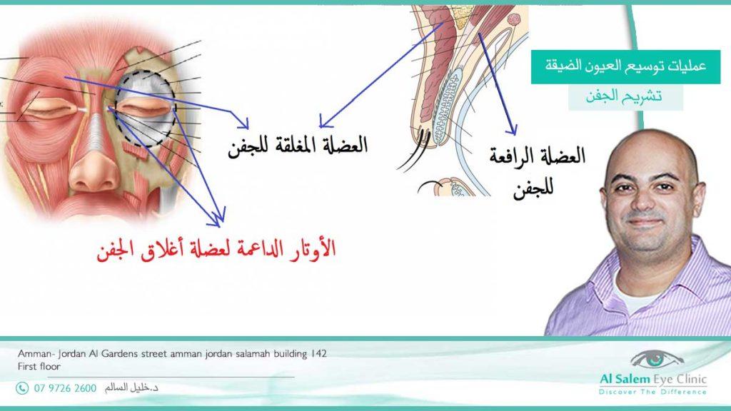 عمليات توسيع العيون الضيقة ، عمليات يتم بها تكبير حجم العين و إضافة مساحة أكبر للجفن . من خلال زيادة حجم الجفن ، أو تصغير الأعضاء المجاورة - عمليات عين القط