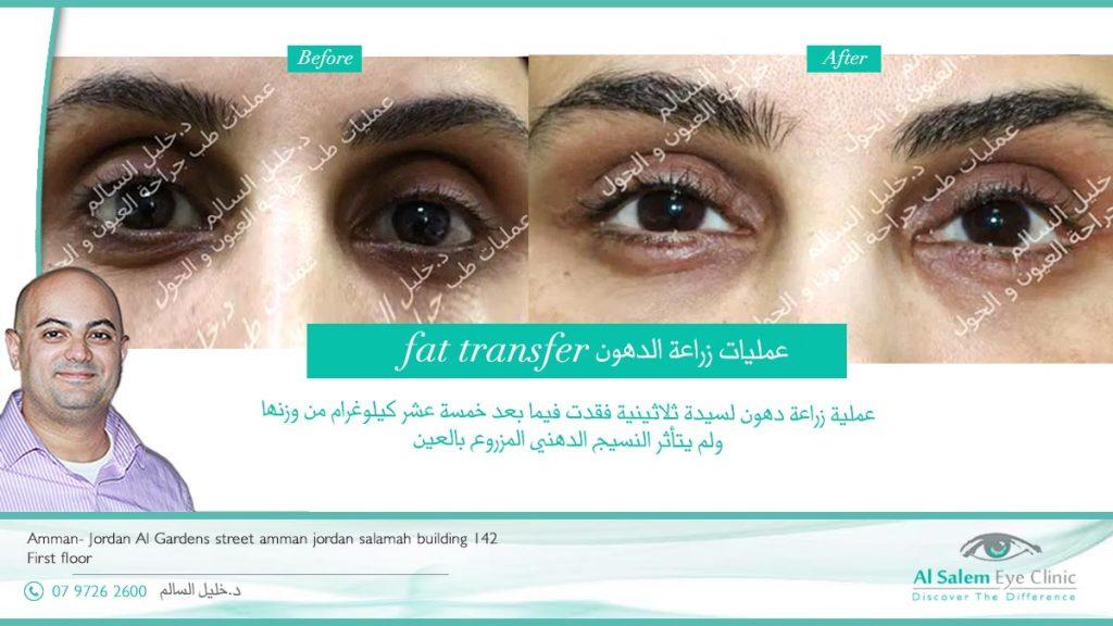 عمليات زراعة الدهون :الأساس بها علاج التجويف حول العين الذي ينتج عن تقدم العمر، نقوم بزراعة الدهون حول العين لتسكير هذه الفراغات . تجميل العيون الغائرة: فن من فنون تجميل العين يتم فيه زراعة مواد طبيعية أو صناعية لإبراز العين