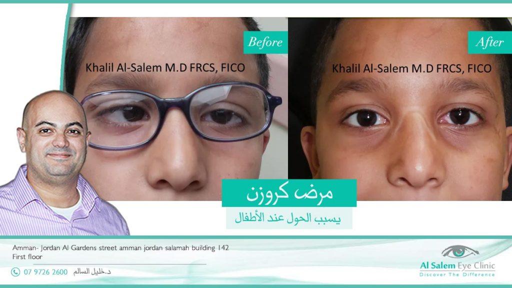 تنقسم عمليات حول العين الى عمليات الحول للأطفال أو للكبار . و قد تتقسم حسب النوع ، فهناك عمليات الحول الوحشي و الانسي . علاج عضلات العين