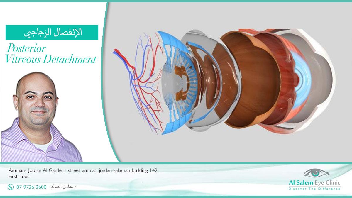 السائل الزجاجي هو سائل لزج في الحجرة الخلفية للعين ، انفصال السائل الزجاجي ، التهاب السائل الزجاجي ، و رؤية أجسام طافية، الذبابة الطائرة ، الأجسام السابحة