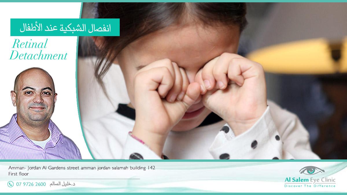 انفصال الشبكية عند الأطفال