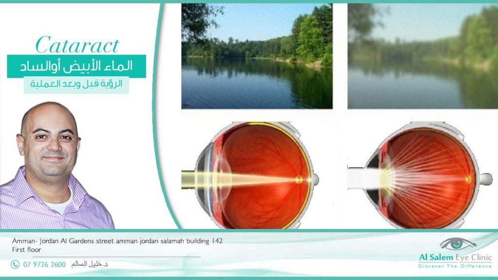 الماء الأبيض في العين، مضاعفات الماء الأبيض؟ هل الماء الأبيض يسبب العمى؟ كم تكلفة عملية المياه البيضاء في الأردن ؟ كيفية علاج المياه البيضاء؟ مرض الساد ، الماء الأبيض ، عملية الساد