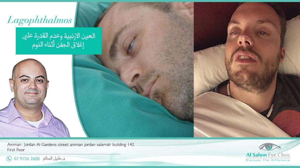 النوم والعين مفتوحة من الأمراض الشائعة جدا ، لها أسماء عدة منها : العين الأرنبية نوم الغزلان أو النوم الغزلاني أو النوم بنصف عين مفتوحة
