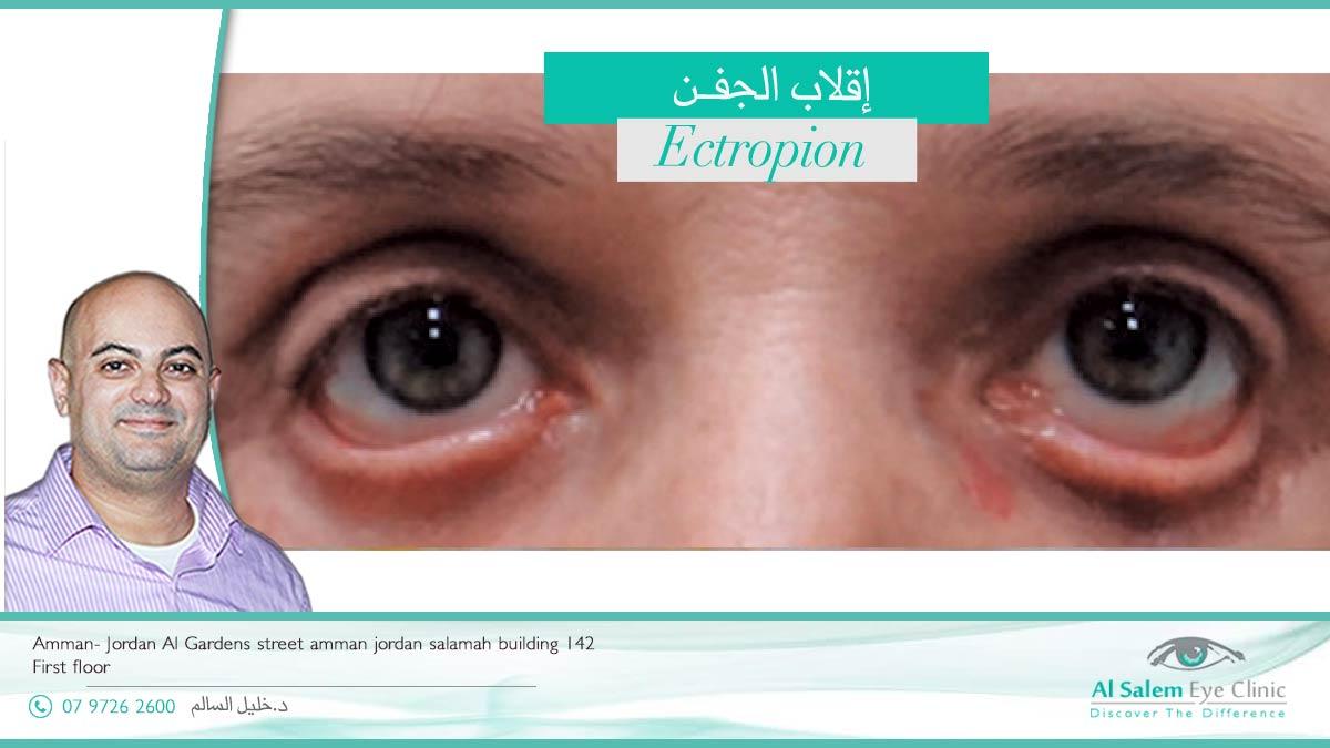 انقلاب جفن العين للداخل أو للخارج من أمراض العيون نادرة الحدوث . انقلاب جفن العين للداخل عند الأطفال مختلفه عنه عند كبار السن إقلاب الجفن و الجفن المقلوب