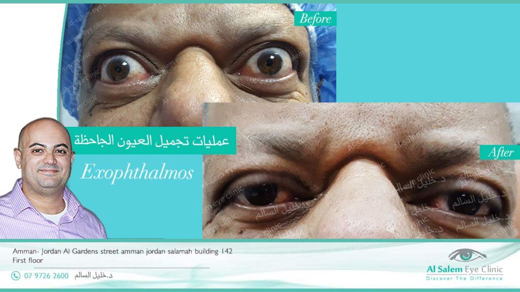 جحوظ العين: بروز العين خارج محجر العين ، . أي زيادة عن الثلث يكون مرض. من أهم أسباب جحوظ العين مرض الغدة الدرقية أو ما يسمى مرض جريفز