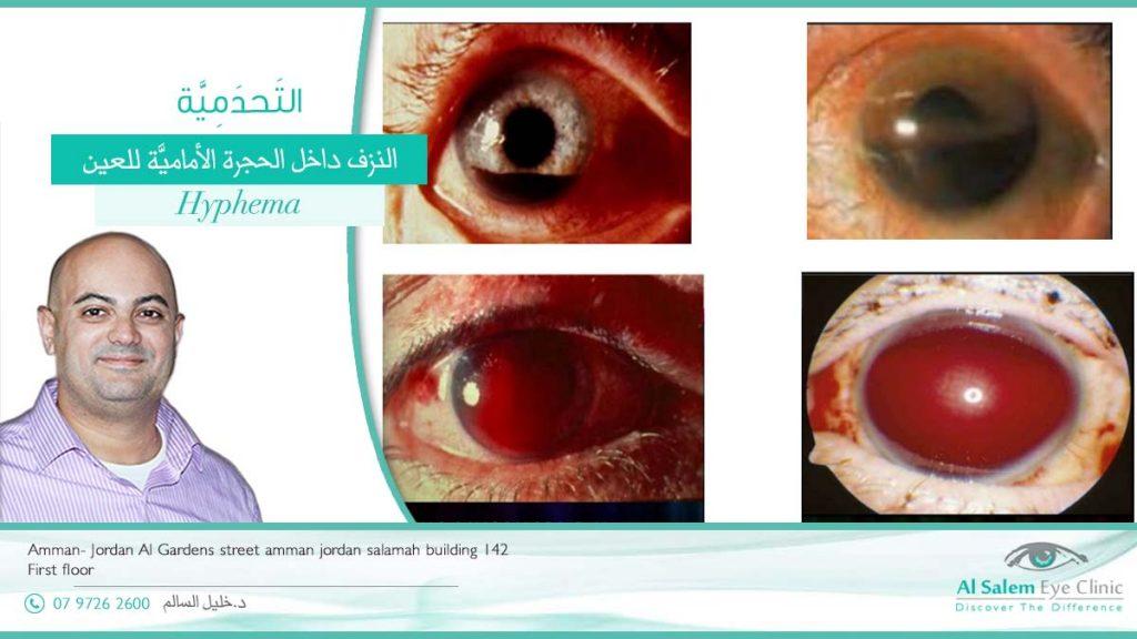 التحدمية أو نزف الحجرة الأمامية للعين ، الدم في الحجرة الأمامية ، بقعه دم في العين . و فرقها عن بقع الدم الحميدة في ملتحمة العين