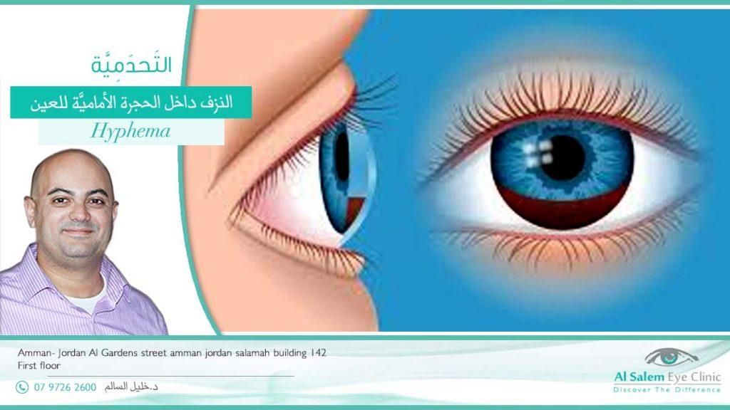 التحدمية أو نزف الحجرة الأمامية للعين ، الدم في الحجرة الأمامية ، بقعه دم في العين . علاج التحدمية ، و فرقها عن بقع الدم الحميدة في ملتحمة العين