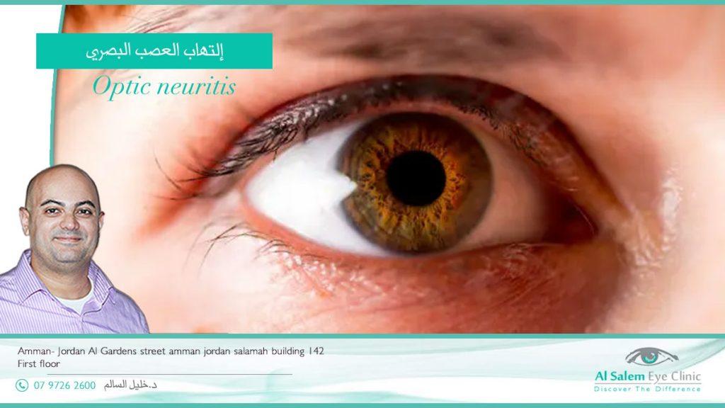 أعراض التهاب العصب البصري