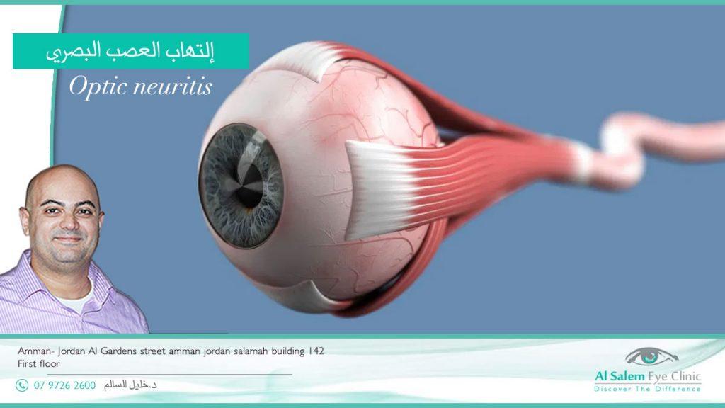 ما وظيفة العصب البصري ، إلتهاب العصب البصري ؟ ما علاج إلتهاب العصب البصري ؟ ما أسباب ضمور العصب البصري ؟ وما أعراض التهاب العصب البصري؟