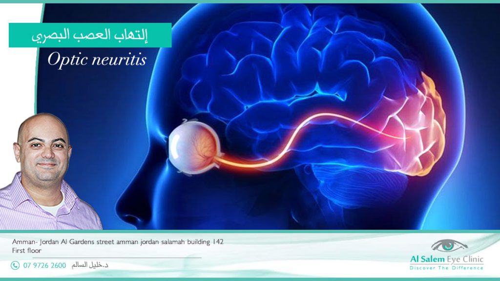 ما هو مرض إلتهاب العصب البصري ؟